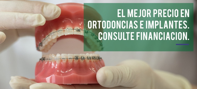 Ortodoncias e Implantes